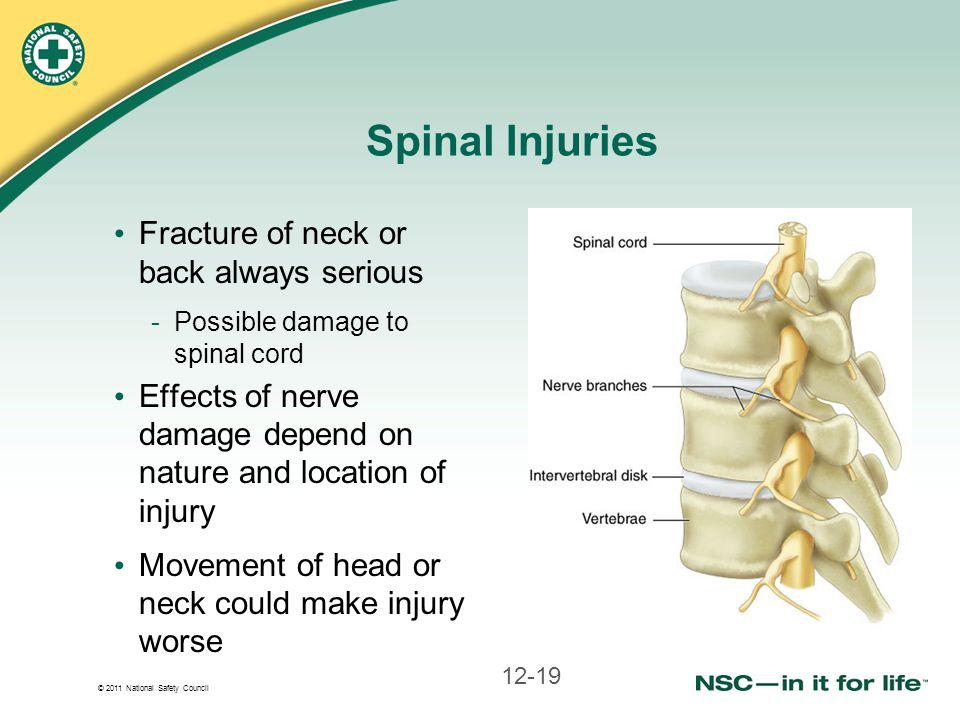 © 2011 National Safety Council Spinal Injuries Fracture of neck or back always serious -Possible damage to spinal cord Effects of nerve damage depend on nature and location of injury Movement of head or neck could make injury worse 12-19