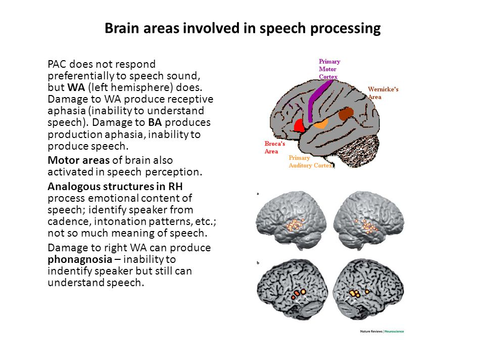 Brain areas involved in speech processing PAC does not respond preferentially to speech sound, but WA (left hemisphere) does. Damage to WA produce rec
