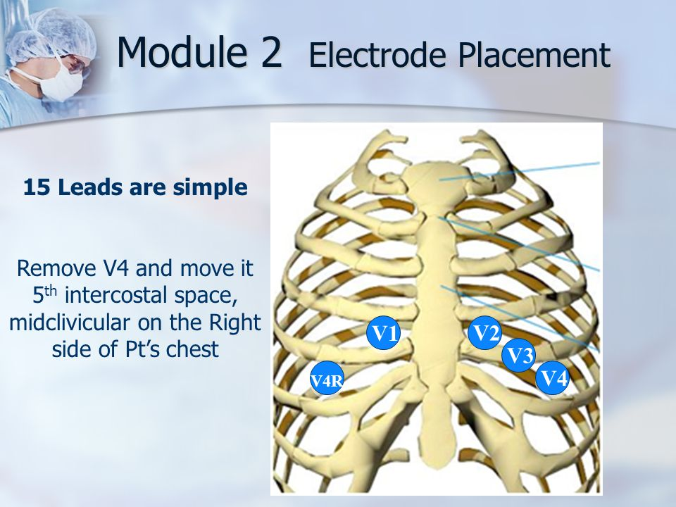 Module 2 Electrode Placement V1 V2 V3 V4 V4R 15 Leads are simple Remove V4 and move it 5 th intercostal space, midclivicular on the Right side of Pt's