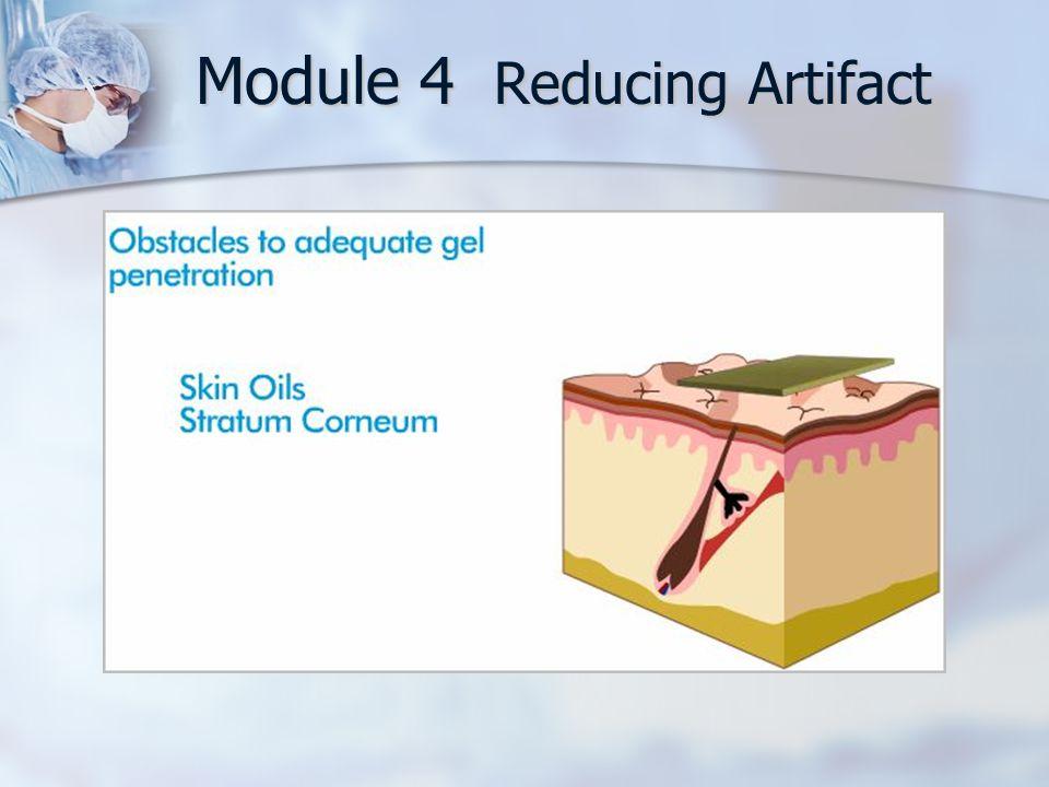 Module 4 Reducing Artifact