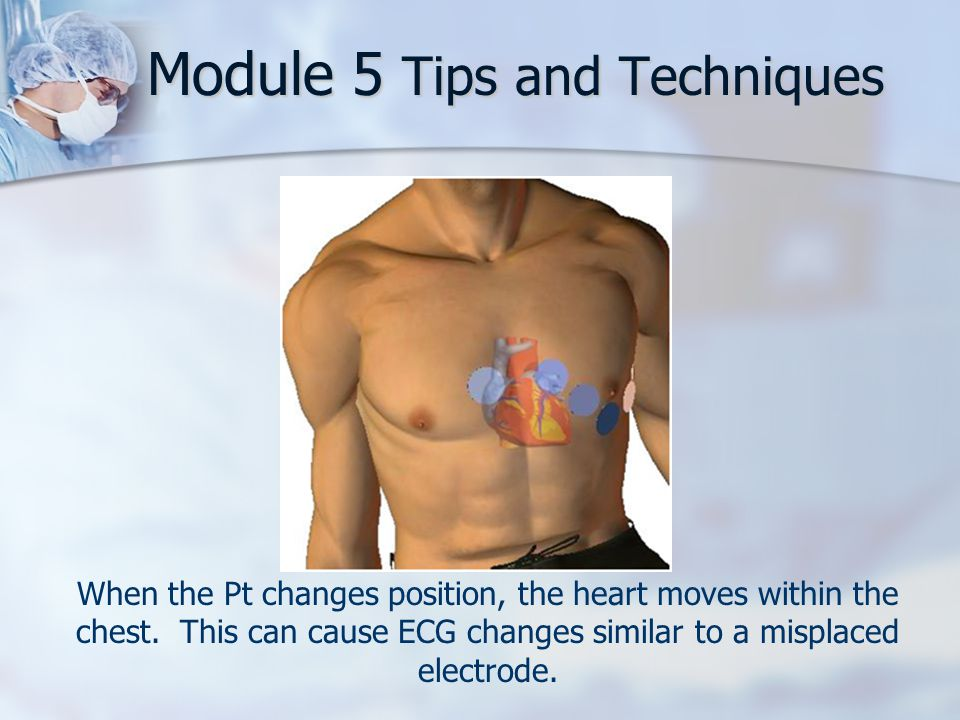 Module 5 Tips and Techniques When the Pt changes position, the heart moves within the chest.