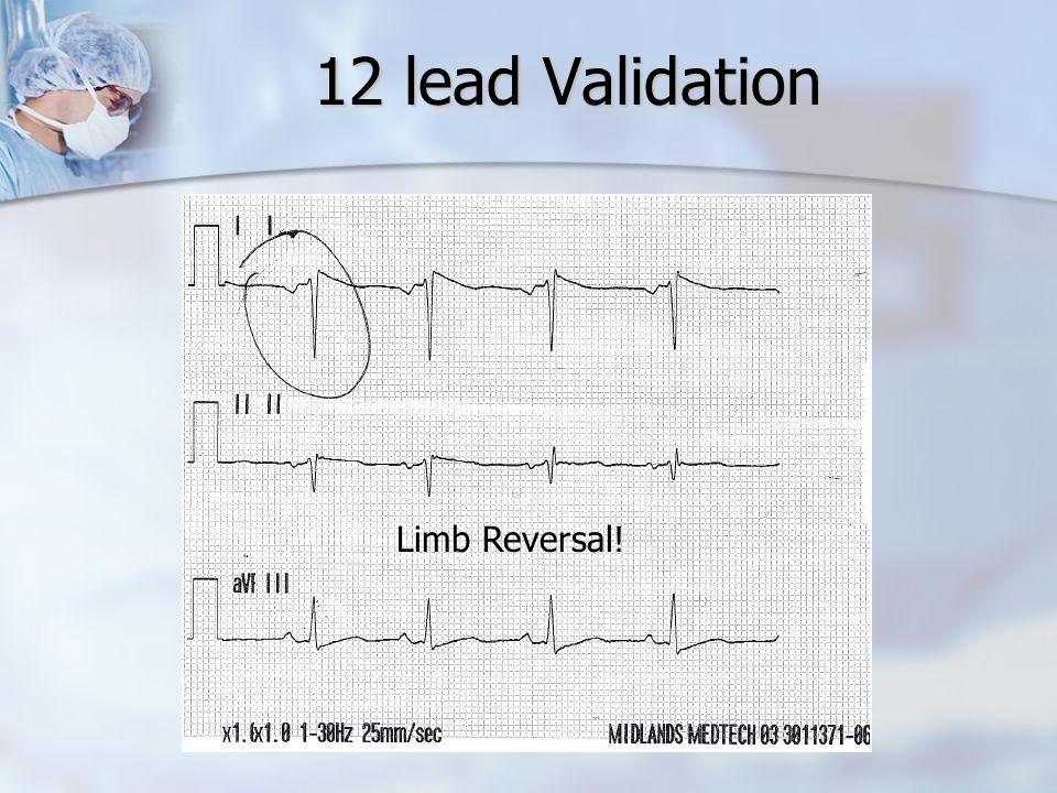 12 lead Validation Limb Reversal!
