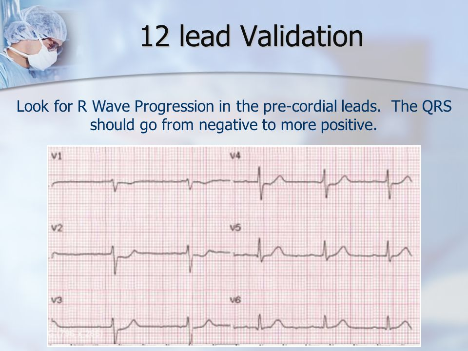 12 lead Validation Look for R Wave Progression in the pre-cordial leads. The QRS should go from negative to more positive.
