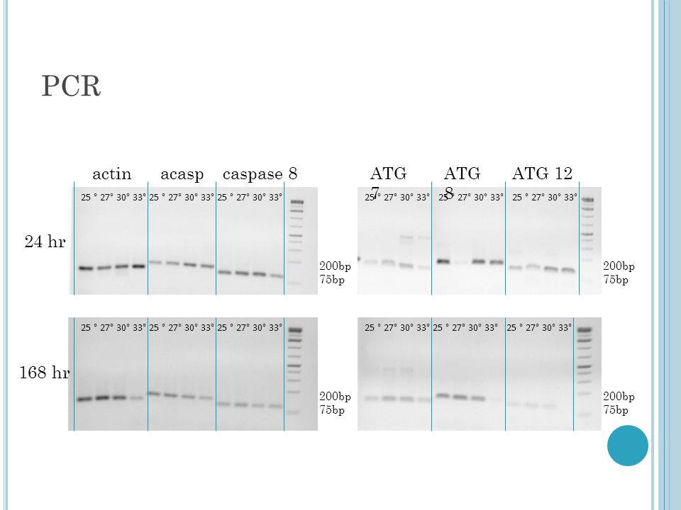 PCR actinacaspcaspase 8ATG 12ATG 8 ATG 7 200bp 75bp 200bp 75bp 24 hr 168 hr 25 ° 27° 30° 33° 200bp 75bp 200bp 75bp