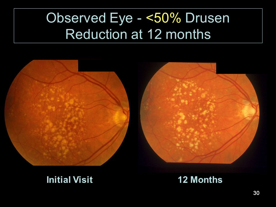 30 Initial Visit12 Months Observed Eye - <50% Drusen Reduction at 12 months