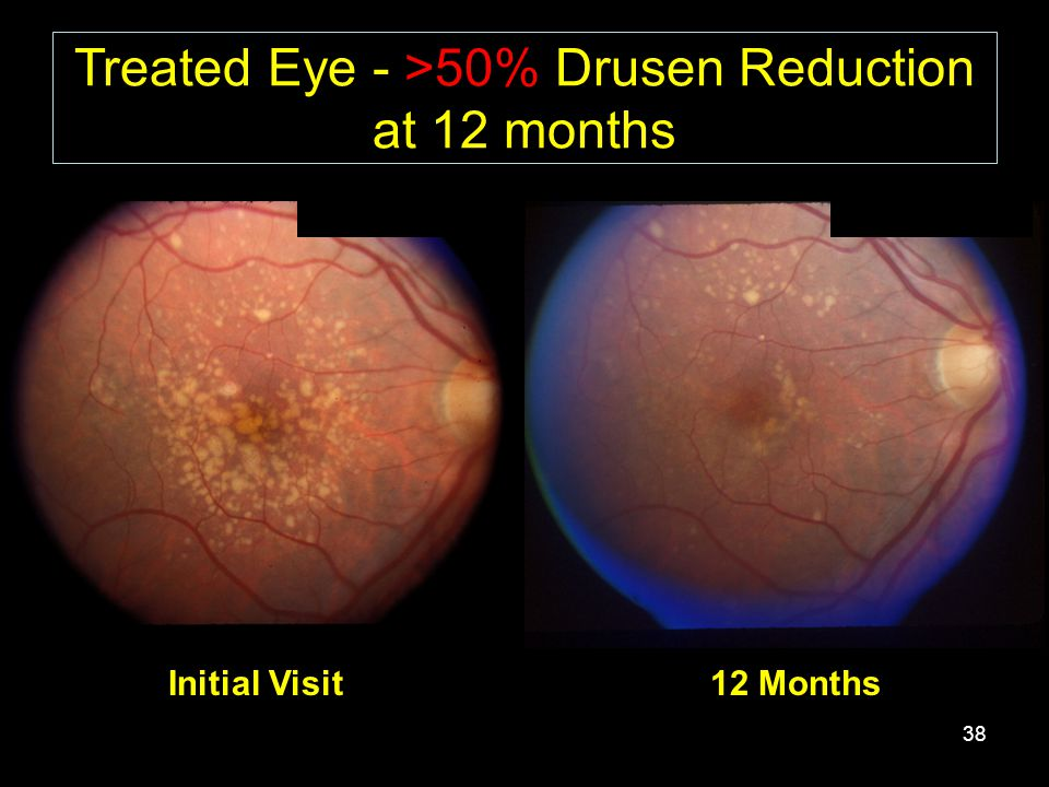 38 Treated Eye - >50% Drusen Reduction at 12 months Initial Visit12 Months