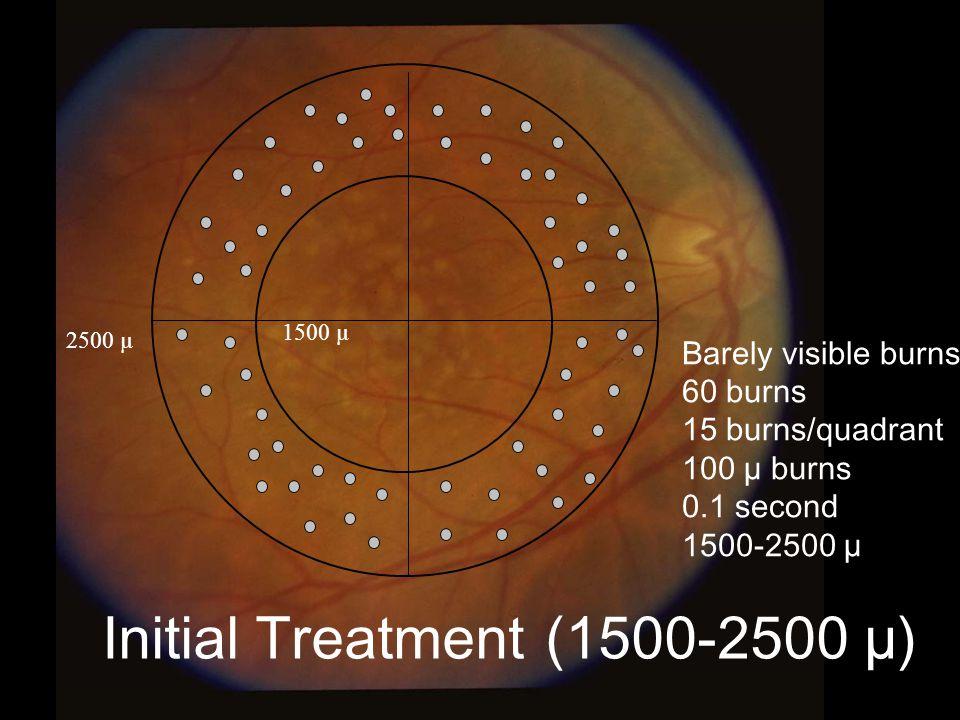 5 Initial Treatment (1500-2500 µ) Barely visible burns 60 burns 15 burns/quadrant 100 µ burns 0.1 second 1500-2500 µ 2500 µ 1500 µ