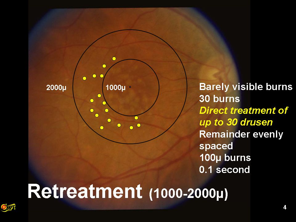 37 Initial Visit12 Months Treated Eye - <50% Drusen Reduction at 12 months
