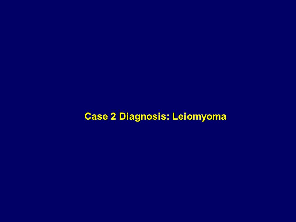 Case 2 Diagnosis: Leiomyoma