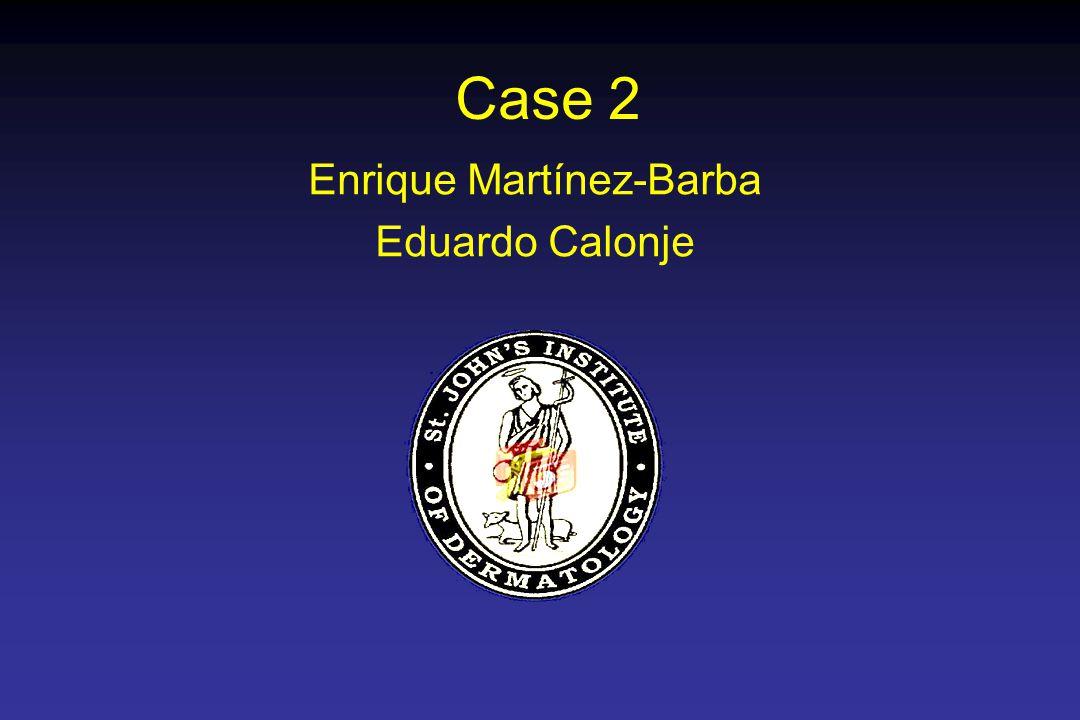 Case 2 Enrique Martínez-Barba Eduardo Calonje