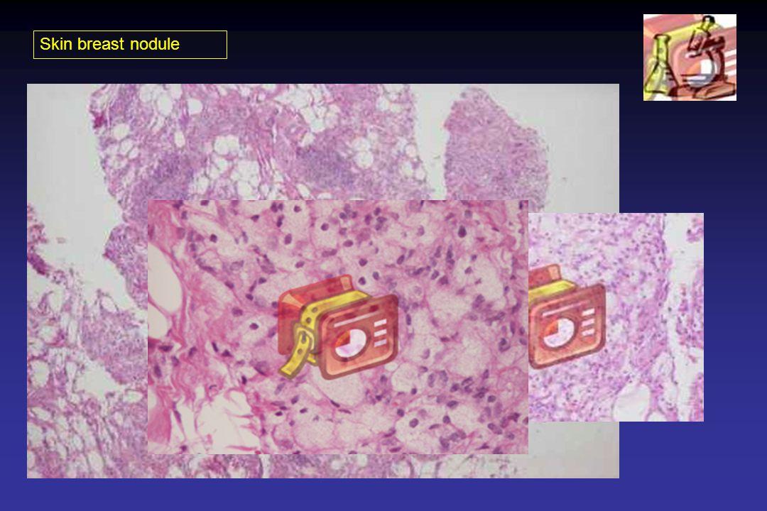 Skin breast nodule
