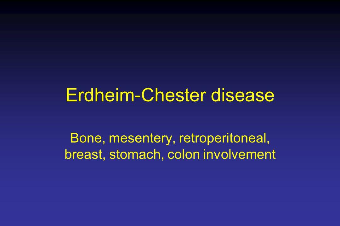 Erdheim-Chester disease Bone, mesentery, retroperitoneal, breast, stomach, colon involvement