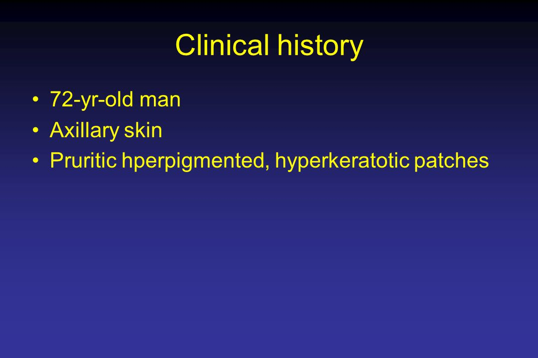 Clinical history 72-yr-old man Axillary skin Pruritic hperpigmented, hyperkeratotic patches