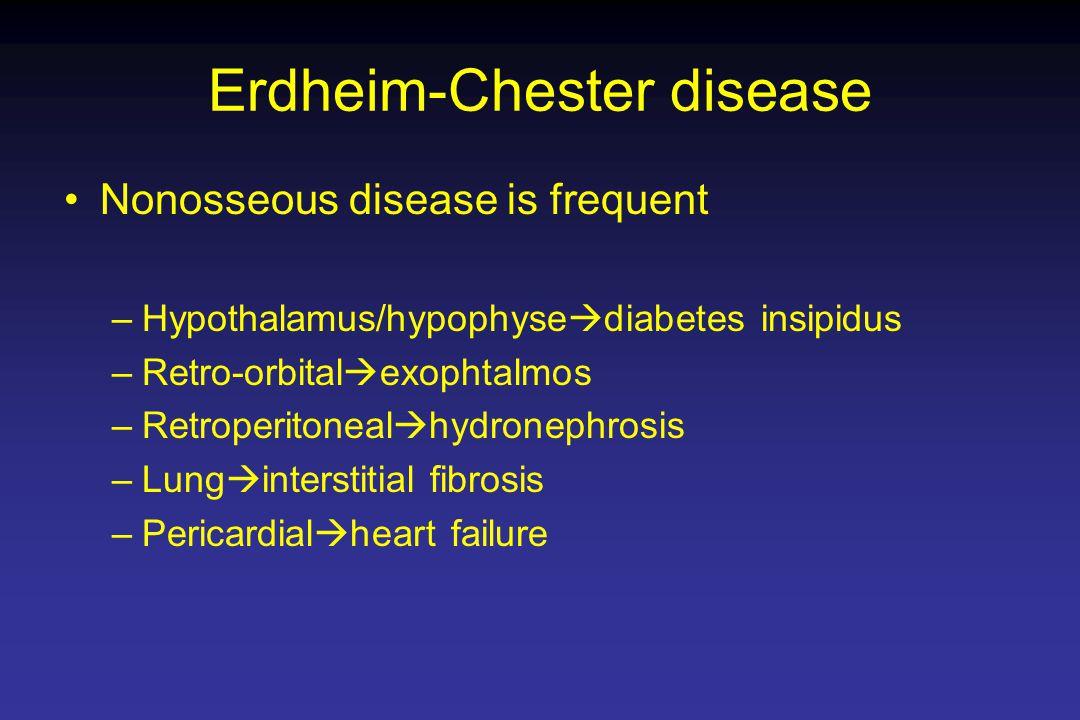 Erdheim-Chester disease Nonosseous disease is frequent –Hypothalamus/hypophyse  diabetes insipidus –Retro-orbital  exophtalmos –Retroperitoneal  hydronephrosis –Lung  interstitial fibrosis –Pericardial  heart failure