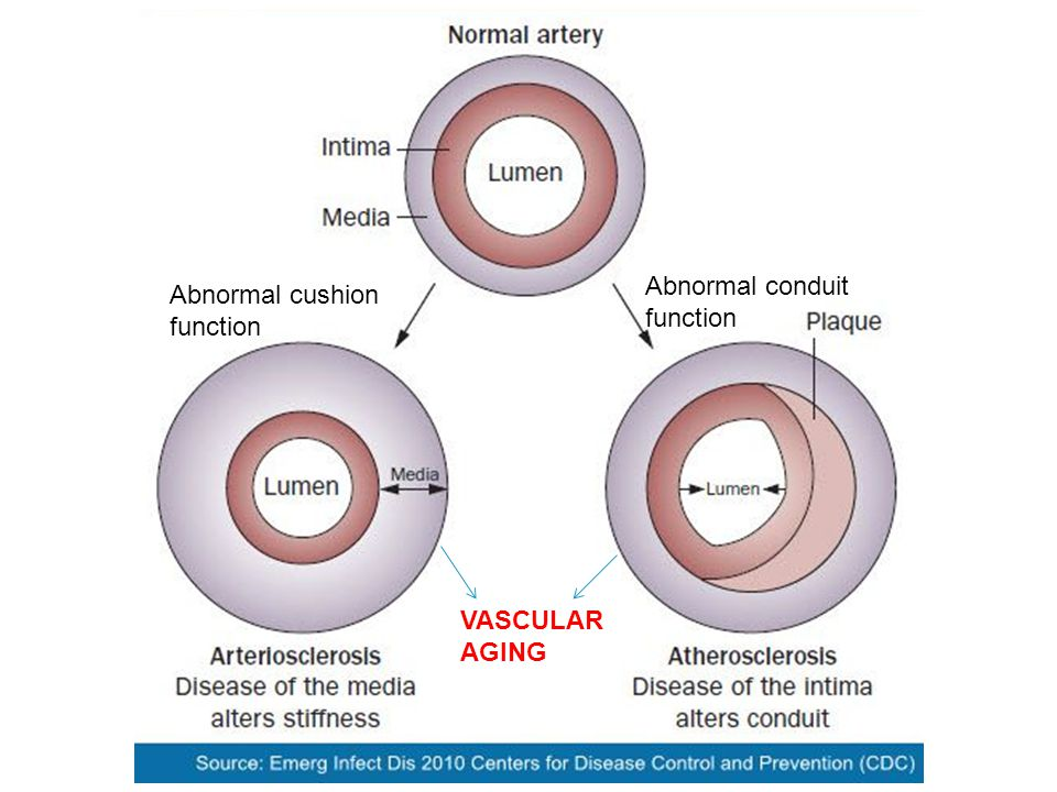 Abnormal cushion function Abnormal conduit function VASCULAR AGING