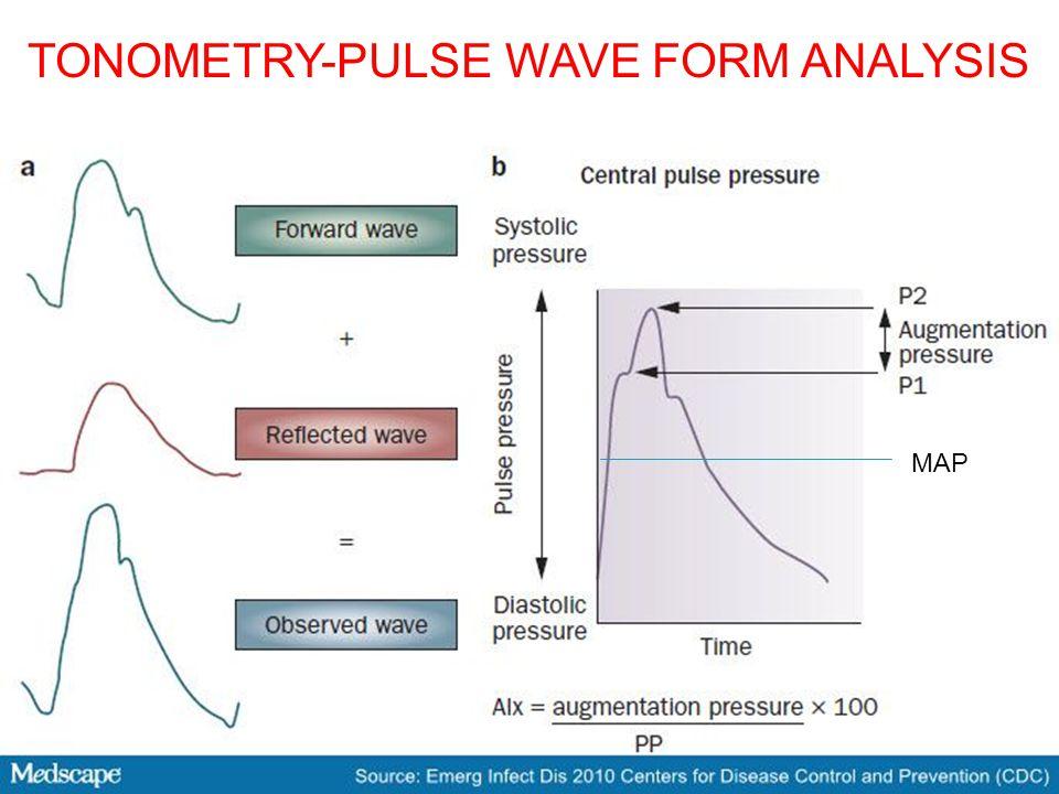 MAP TONOMETRY-PULSE WAVE FORM ANALYSIS