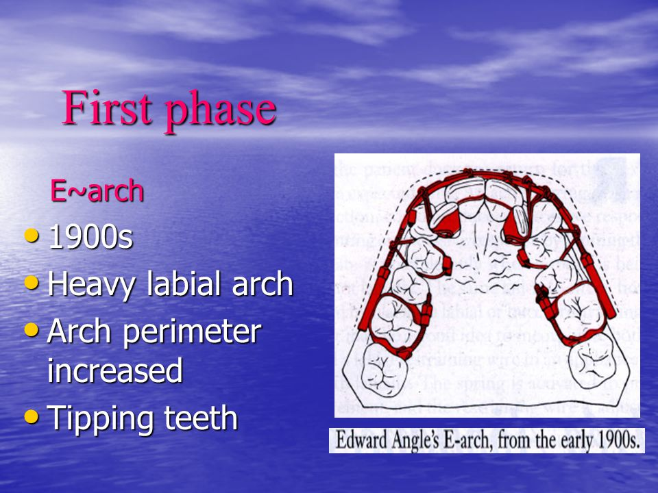 First phase E~arch E~arch 1900s 1900s Heavy labial arch Heavy labial arch Arch perimeter increased Arch perimeter increased Tipping teeth Tipping teet