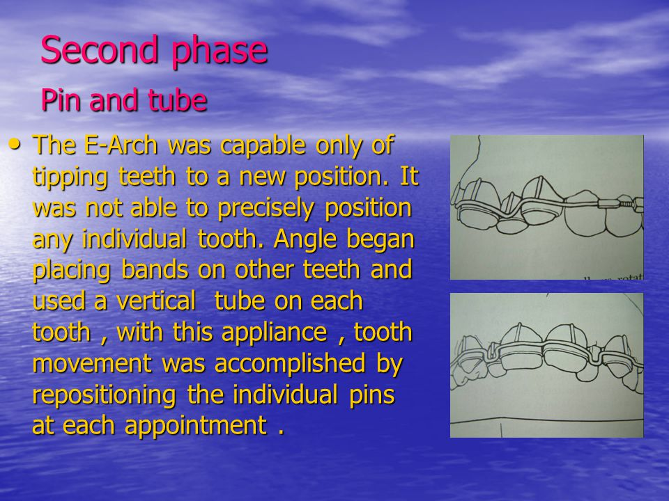 Second phase Pin and tube The E-Arch was capable only of tipping teeth to a new position. It was not able to precisely position any individual tooth.