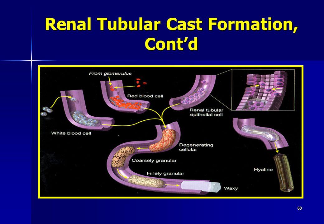 60 Renal Tubular Cast Formation, Cont'd
