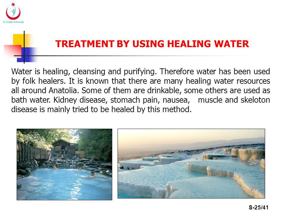 S-25/41 TREATMENT BY USING HEALING WATER Water is healing, cleansing and purifying.