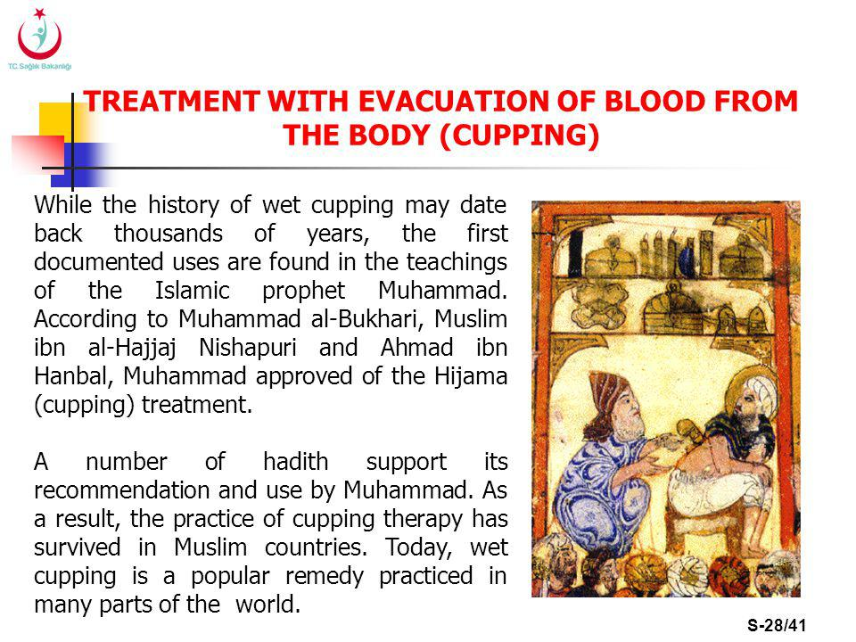 S-28/41 TREATMENT WITH EVACUATION OF BLOOD FROM THE BODY (CUPPING) While the history of wet cupping may date back thousands of years, the first documented uses are found in the teachings of the Islamic prophet Muhammad.