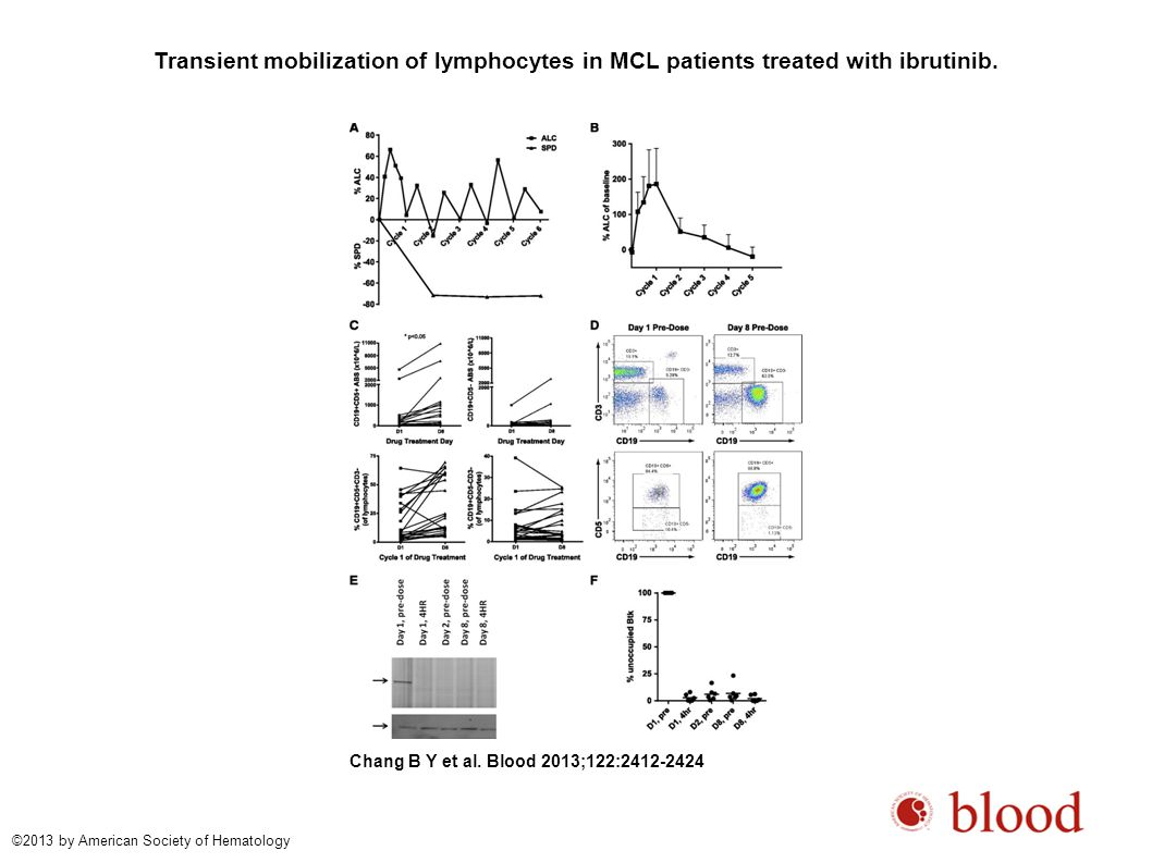 Transient mobilization of lymphocytes in MCL patients treated with ibrutinib.
