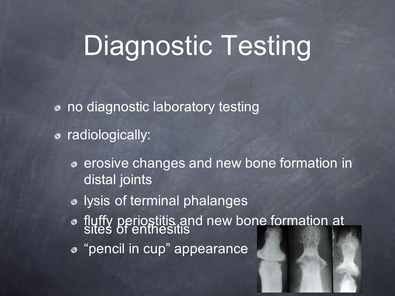Diagnostic Testing no diagnostic laboratory testing radiologically: erosive changes and new bone formation in distal joints lysis of terminal phalange