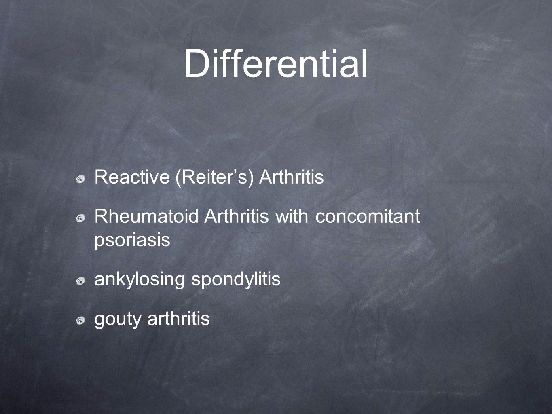 Differential Reactive (Reiter's) Arthritis Rheumatoid Arthritis with concomitant psoriasis ankylosing spondylitis gouty arthritis