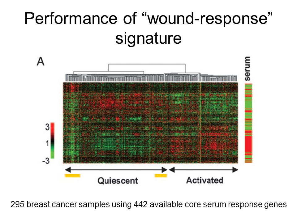 """Performance of """"wound-response"""" signature 295 breast cancer samples using 442 available core serum response genes"""