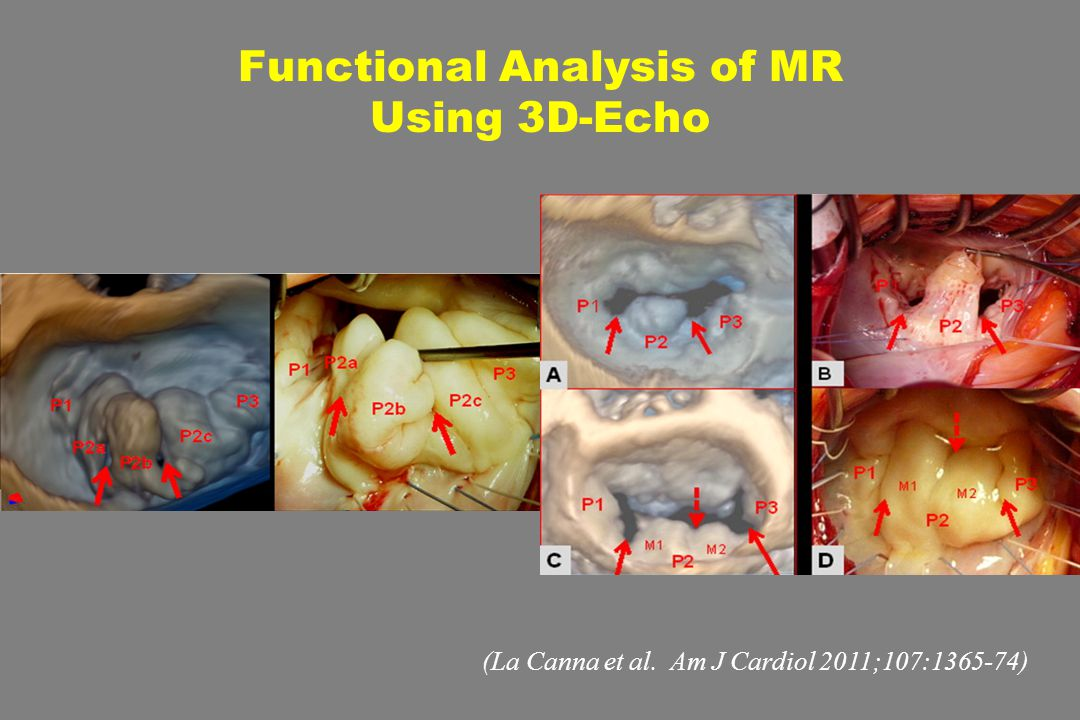 Functional Analysis of MR Using 3D-Echo (La Canna et al. Am J Cardiol 2011;107:1365-74)