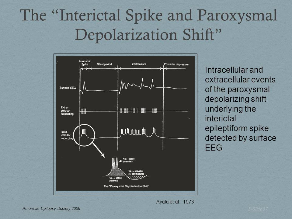 The Interictal Spike and Paroxysmal Depolarization Shift B-Slide 37 Intracellular and extracellular events of the paroxysmal depolarizing shift underlying the interictal epileptiform spike detected by surface EEG Ayala et al., 1973 American Epilepsy Society 2008
