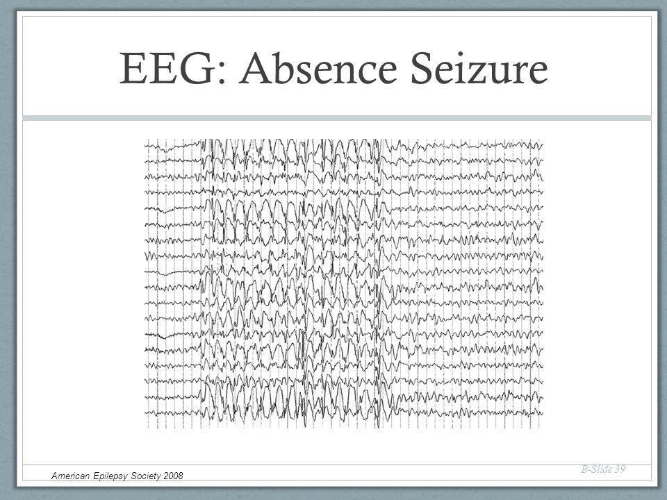 EEG: Absence Seizure B-Slide 39 American Epilepsy Society 2008
