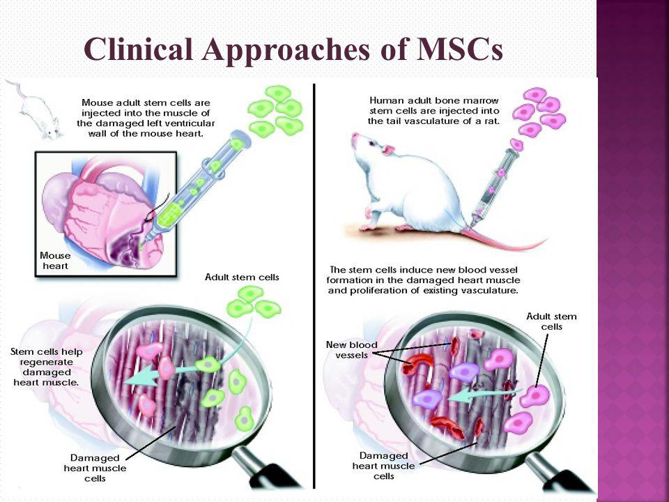 Clinical Approaches of MSCs