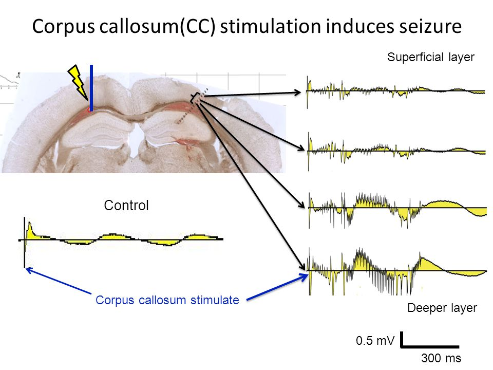 Corpus callosum(CC) stimulation induces seizure Superficial layer 0.5 mV 300 ms Deeper layer Corpus callosum stimulate Control