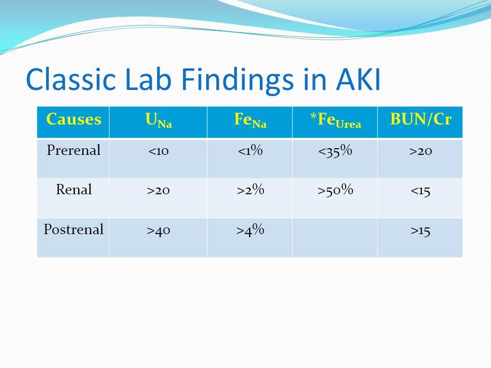 Classic Lab Findings in AKI CausesU Na Fe Na *Fe Urea BUN/Cr Prerenal<10<1%<35%>20 Renal>20>2%>50%<15 Postrenal>40>4%>15