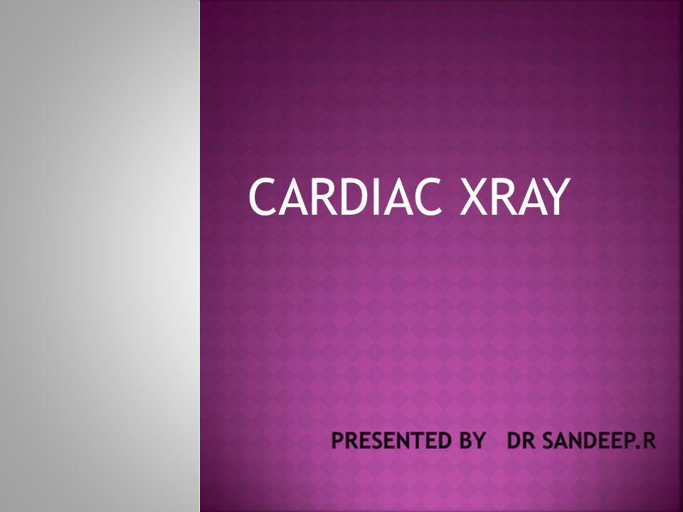 CARDIAC XRAY