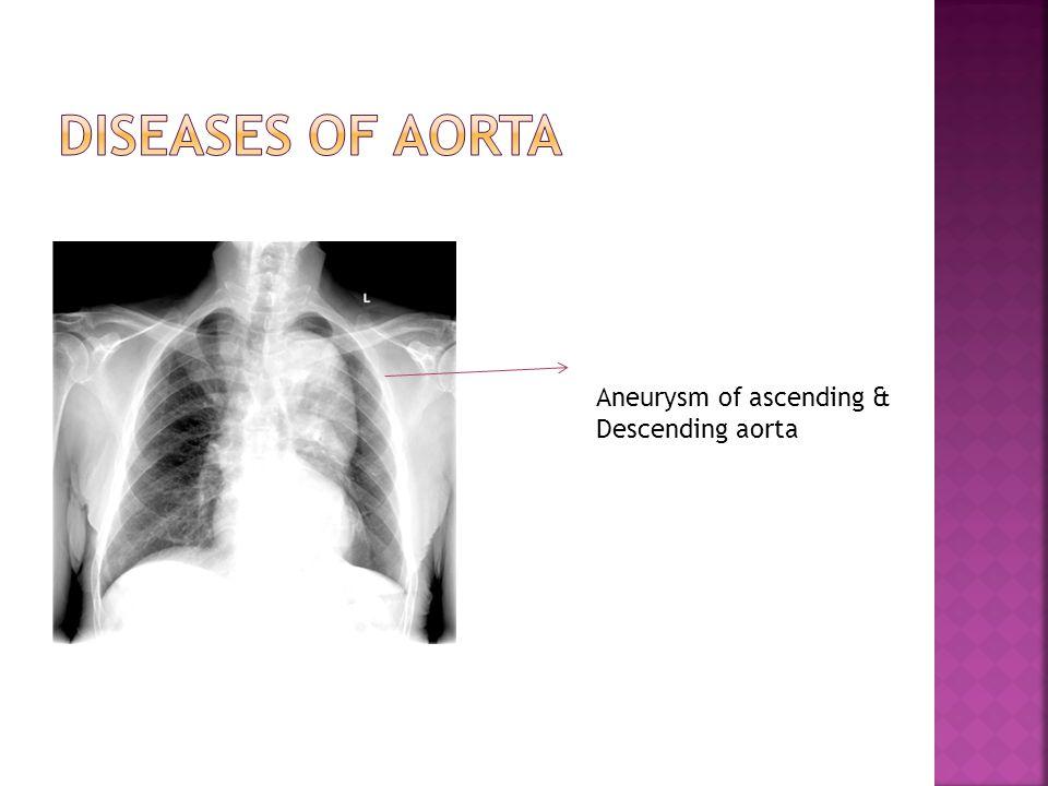 Aneurysm of ascending & Descending aorta