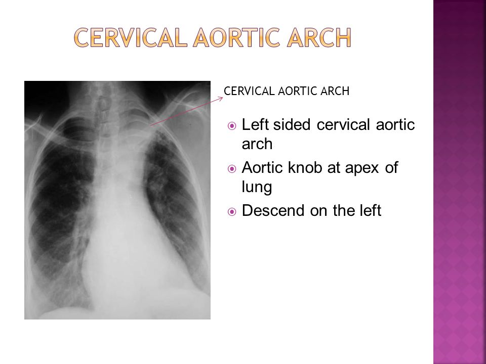 Left sided cervical aortic arch  Aortic knob at apex of lung  Descend on the left CERVICAL AORTIC ARCH
