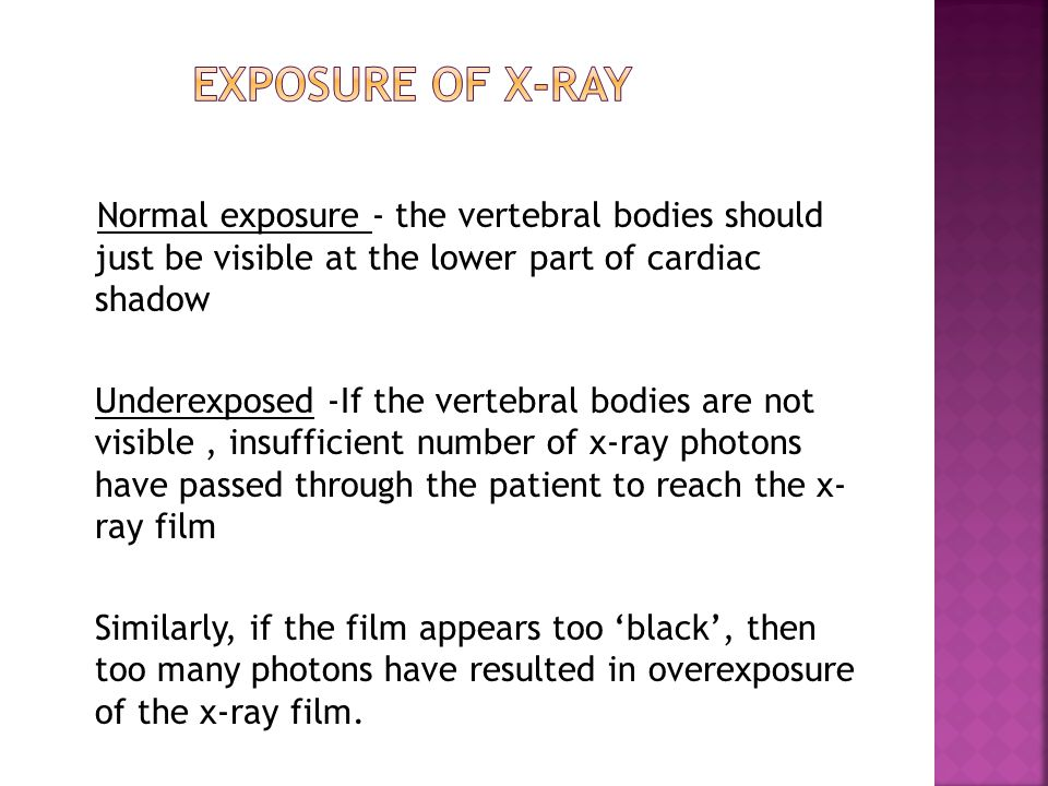 Normal exposure - the vertebral bodies should just be visible at the lower part of cardiac shadow Underexposed -If the vertebral bodies are not visibl