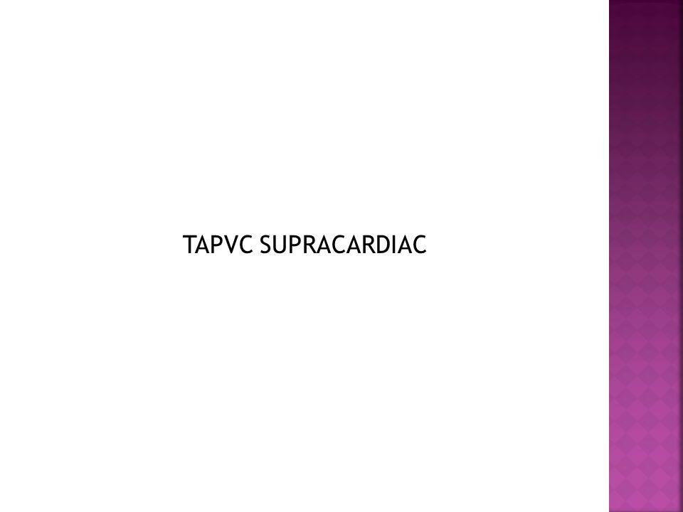 TAPVC SUPRACARDIAC