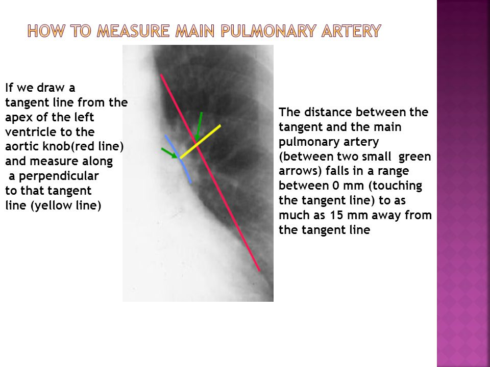 If we draw a tangent line from the apex of the left ventricle to the aortic knob(red line) and measure along a perpendicular to that tangent line (yel