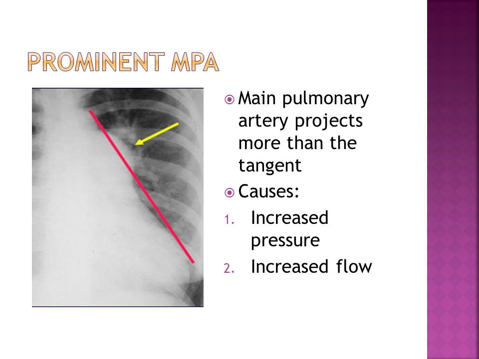  Main pulmonary artery projects more than the tangent  Causes: 1. Increased pressure 2. Increased flow