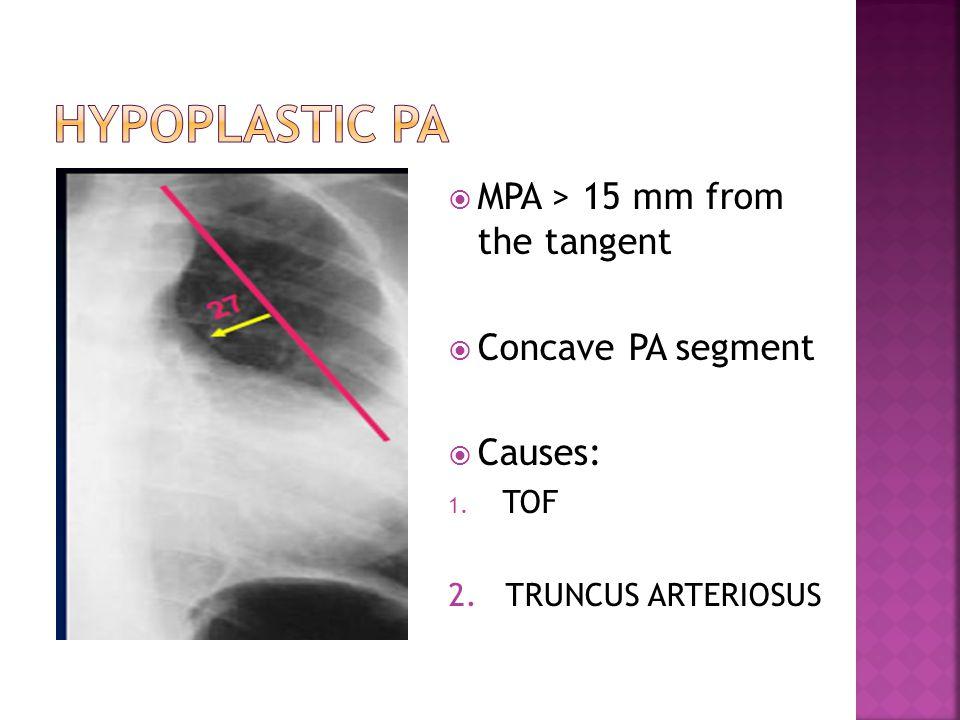  MPA > 15 mm from the tangent  Concave PA segment  Causes: 1. TOF 2. TRUNCUS ARTERIOSUS