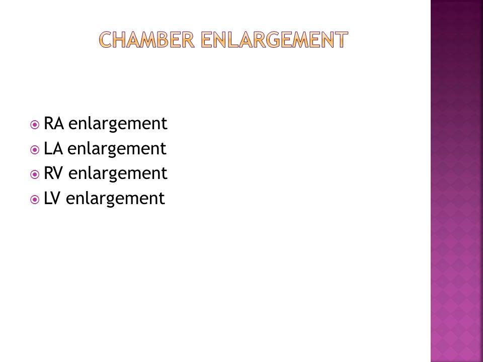  RA enlargement  LA enlargement  RV enlargement  LV enlargement