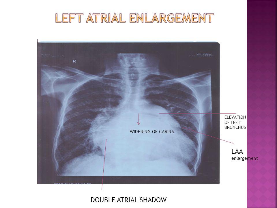DOUBLE ATRIAL SHADOW WIDENING OF CARINA ELEVATION OF LEFT BRONCHUS LAA enlargement