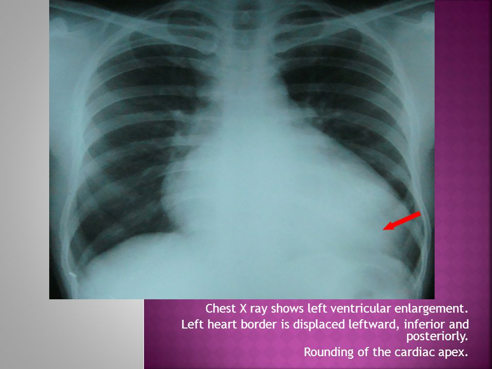 Chest X ray shows left ventricular enlargement. Left heart border is displaced leftward, inferior and posteriorly. Rounding of the cardiac apex.