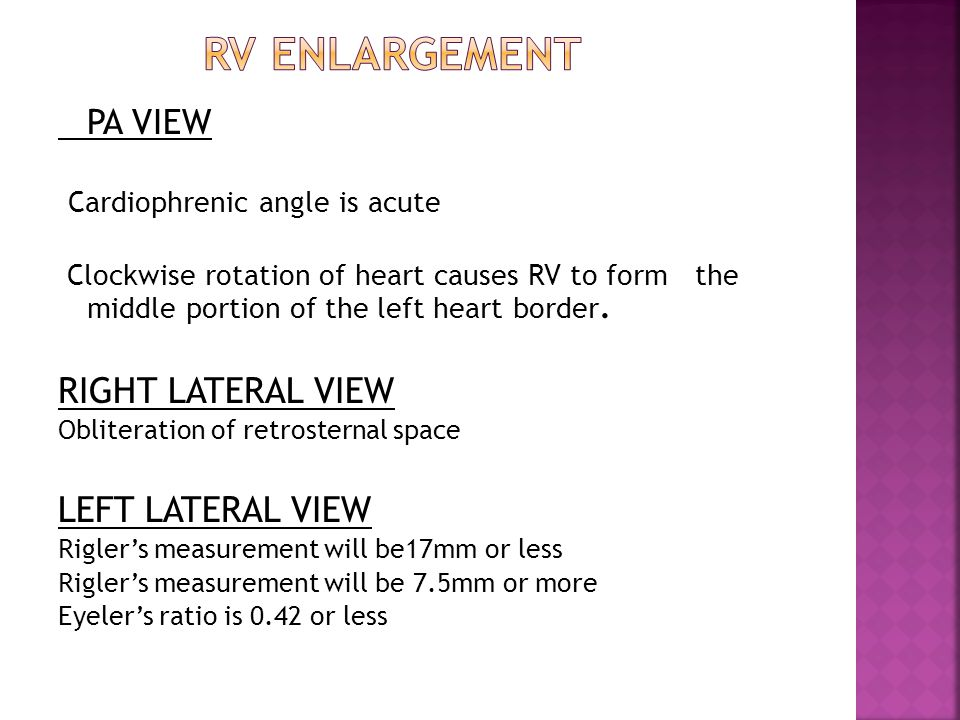 PA VIEW Cardiophrenic angle is acute Clockwise rotation of heart causes RV to form the middle portion of the left heart border. RIGHT LATERAL VIEW Obl