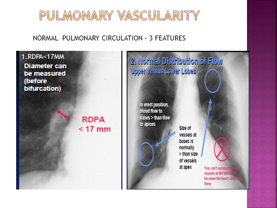 1.RDPA<17MM NORMAL PULMONARY CIRCULATION – 3 FEATURES