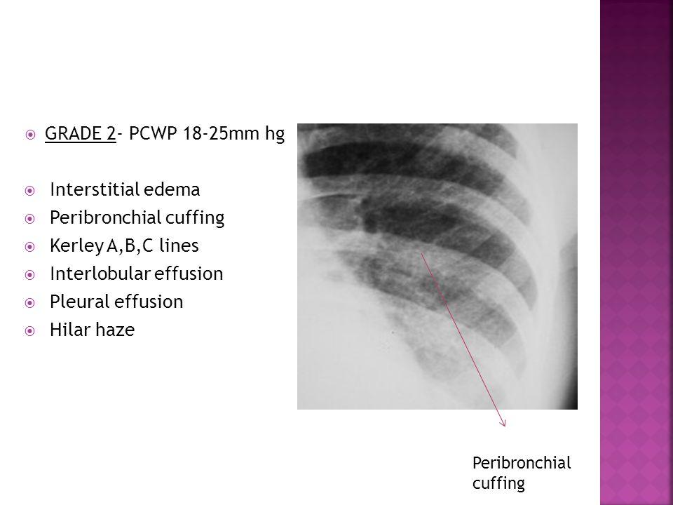 GRADE 2- PCWP 18-25mm hg  Interstitial edema  Peribronchial cuffing  Kerley A,B,C lines  Interlobular effusion  Pleural effusion  Hilar haze P
