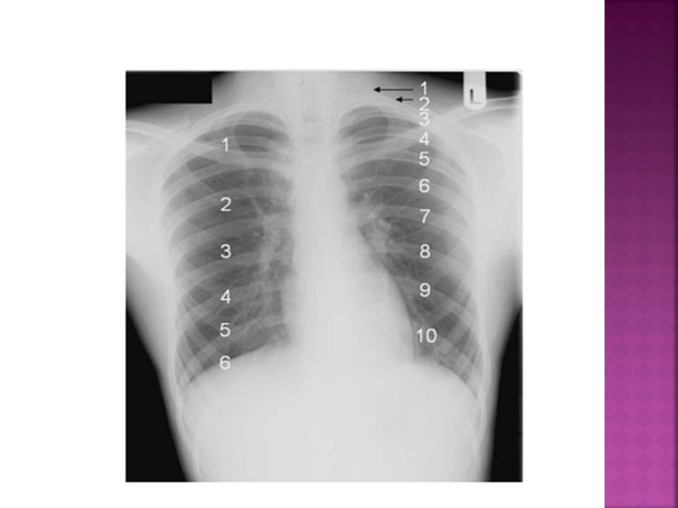 POOR INSPIRATORY FILMNORMAL INSPIRATORY FILM 1 2 3 1.MEDIASTINAL WIDENING 2.CMGLY 3.LOWER LOBE PATCHY OPACIFICN